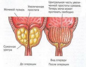 Лечение простатита и инфекций