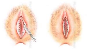 половые губы фото большие малые